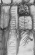 MONIMIACEAE Levieria squarrosa