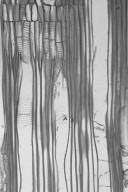 MONIMIACEAE Xymalos monospora