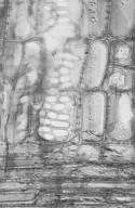 OLACACEAE Strombosia pustulata