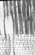 OPILIACEAE Scleropyrum aurantiacum