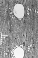 RHIZOPHORACEAE Anopyxis klaineana