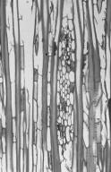 ACTINIDIACEAE Saurauia nudiflora