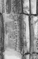 ACTINIDIACEAE Saurauia schumanniana