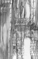 SAPOTACEAE Planchonella anteridifera