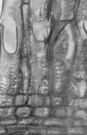 SAPOTACEAE Planchonella australis