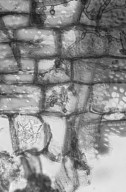 MALVACEAE STERCULIOIDEAE Sterculia quadrifida