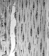 MYRTACEAE Eucalyptus cladocalyx