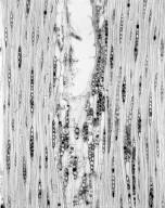 MYRTACEAE Corymbia maculata