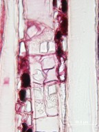 STYRACACEAE Bruinsmia styracoides
