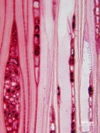 STYRACACEAE Halesia macgregorii