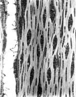 MYRTACEAE Eucalyptus sideroxylon