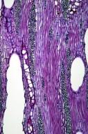LEGUMINOSAE CAESALPINIOIDEAE Gleditsia japonica