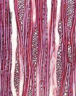 SYMPLOCACEAE Symplocos cochinchinensis laurina
