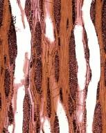 ULMACEAE Ulmus parvifolia