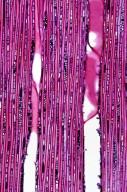 EUPHORBIACEAE Macaranga tanarius