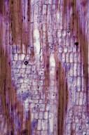 PHYLLANTHACEAE Antidesma montanum montanum