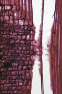 PHYLLANTHACEAE Glochidion zeylanicum tomentosum