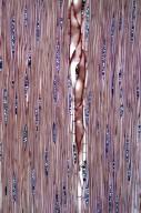 LEGUMINOSAE CAESALPINIOIDEAE Mimosoid Clade Acacia confusa