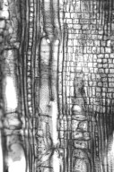 MALPIGHIACEAE Tristellateia australasiae