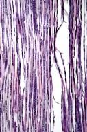 MYRICACEAE Myrica gale tomentosa