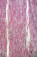CELASTRACEAE Microtropis japonica