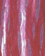CANNABACEAE Celtis sinensis japonica