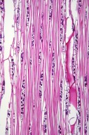 LAURACEAE Litsea acuminata