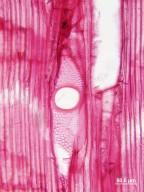 CANNABACEAE Trema micrantha