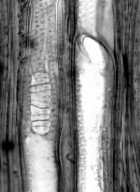 DIPSACACEAE Pterocephalus dumetorum