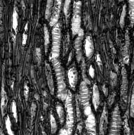 MISODENDRACEAE Misodendron imbricatum