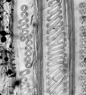 WINTERACEAE Zygogynum bicolor