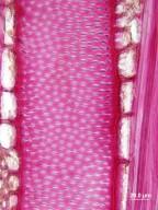 CORNACEAE Alangium kurzii