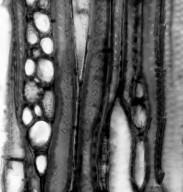 APOCYNACEAE Alyxia olivaeformis