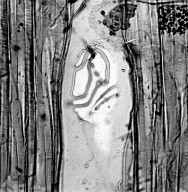 BALANOPACEAE Balanops australiana