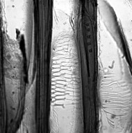 BALANOPACEAE Balanops sparsifolia