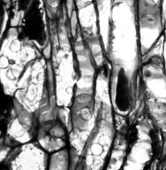 CEPHALOTACEAE Cephalotus follicularis