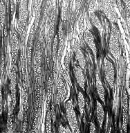 GYROSTEMONACEAE Gyrostemon ramulosus