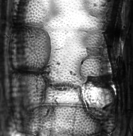 SPHAEROSEPALACEAE Rhopalocarpus similis