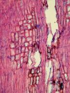 ASTERACEAE Scalesia helleri