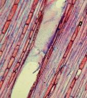 ASTERACEAE Scalesia pedunculata