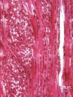 CASUARINACEAE Gymnostoma poissonianum