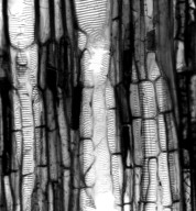 CHLORANTHACEAE Hedyosmum scabrum