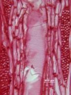 LEGUMINOSAE CAESALPINIOIDEAE Gleditsia macracantha