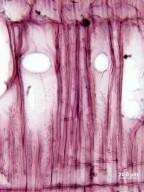 RUBIACEAE Exostema caribaeum