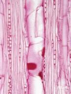 RUTACEAE Zanthoxylum americanum