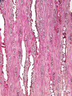 VERBENACEAE Citharexylum spinosum