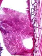 ANNONACEAE Cleistopholis patens