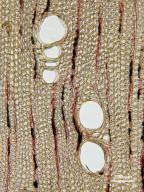 SAPINDACEAE Diploglottis australis