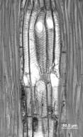 MALVACEAE BOMBACOIDEAE Fremontodendron californicum