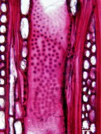RUBIACEAE Corynanthe pachyceras